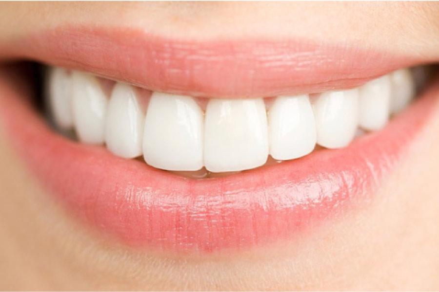 woman's smile showing off porcelain veneers